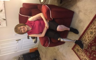 Amputee Spotlight with Debbie Homewood