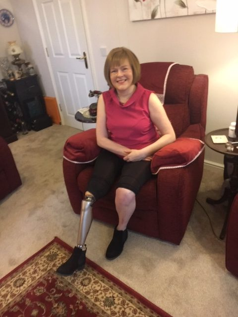 Amputee Spotlight with Debbie Homewood